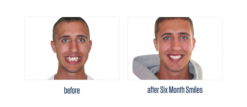 6 month smiles before after